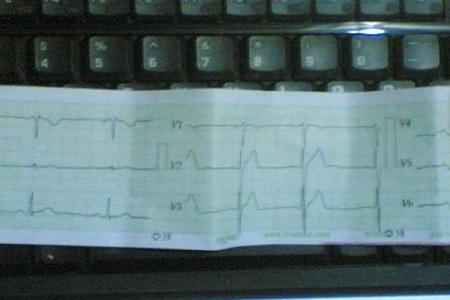 Hasil detak jantung